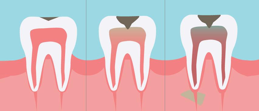 Лечение на кариес в Marinova Dental Clinic