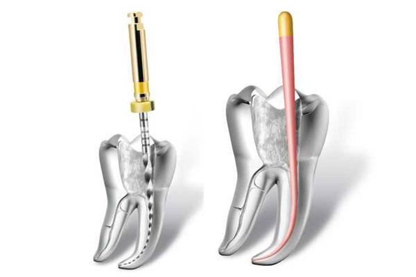 Кореново лечение в Marinova Dental Clinic