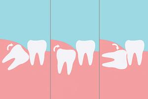 Хирургична стоматология в Marinova Dental Clinic