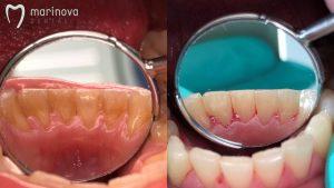 Почистване на зъбен камък в Marinova Dental Clinic (ж.к. Изток, София)